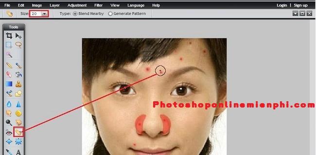 Xóa mụn trứng cá, vết thâm, mụn ruồi với Photoshop Online